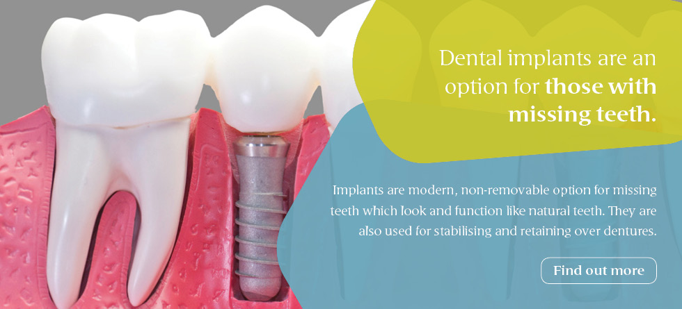 Dental implants are an option for those with missing teeth
