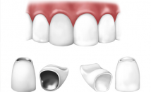 Dental Crowns and Bridges
